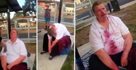 Shocking Video of Girl Beating Boy with Down Syndrome…and it's Bloody