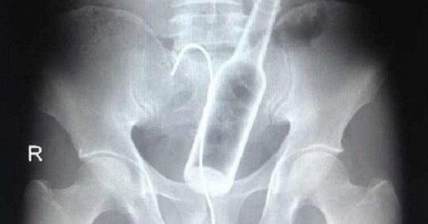 8 Craziest X-Ray Photos that will make you Cringe.