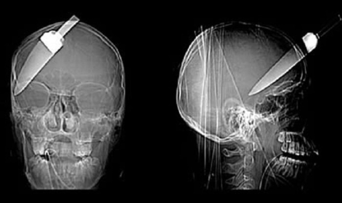 crazy-xray-near-dead-photos-knife-in-brain